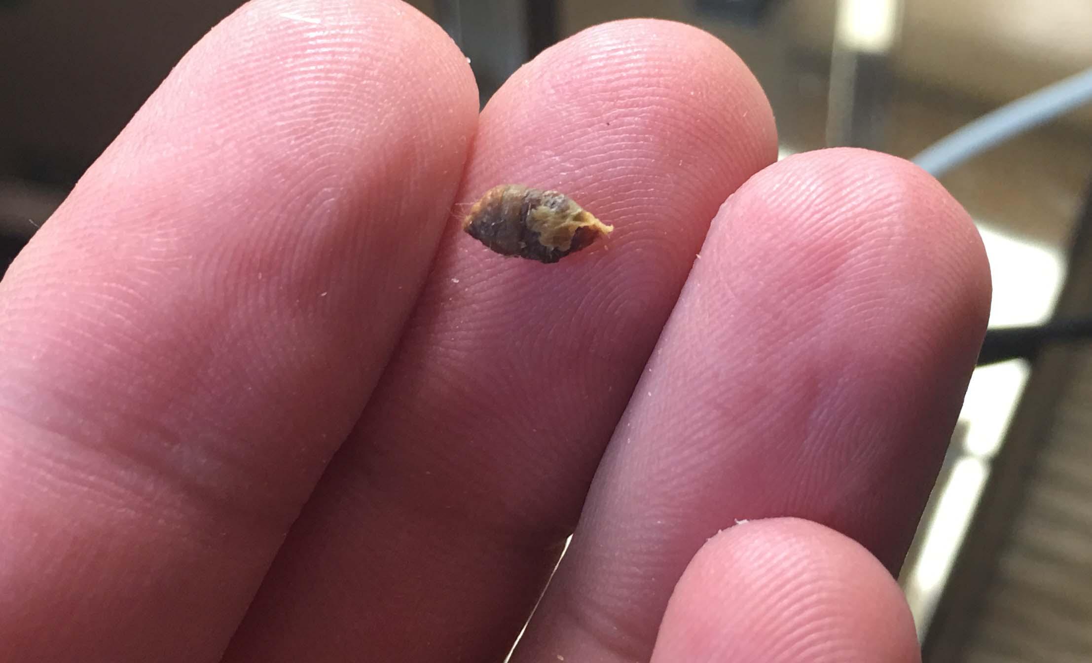 cerumen in ear 7-1-2016